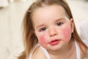Zmiana skórna spowodowana alergią u dziecka